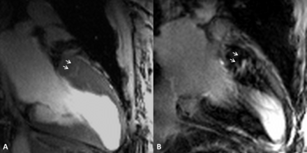 Image of microscopic myocardial tissue structure showing 'myocardial crypts' – minute clefts or fissures (arrows). Left: 7T MRI with high-resolution CINE imaging. Right: 3T MRI with contrast enhancement. Copyright: Charité – Universitätsmedizin Berlin.